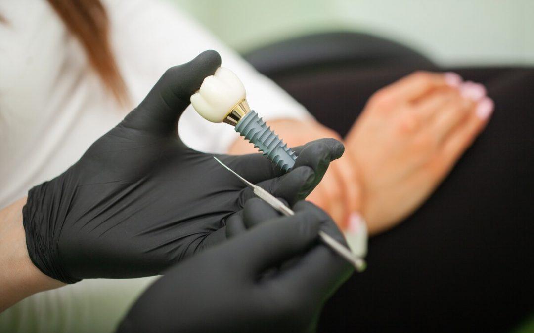¿Qué cuidados hay que seguir tras ponerse un implante dental?