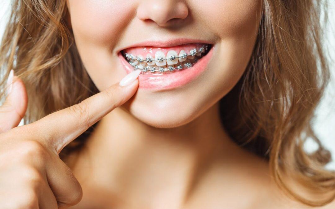 Trucos para evitar las llagas con la ortodoncia