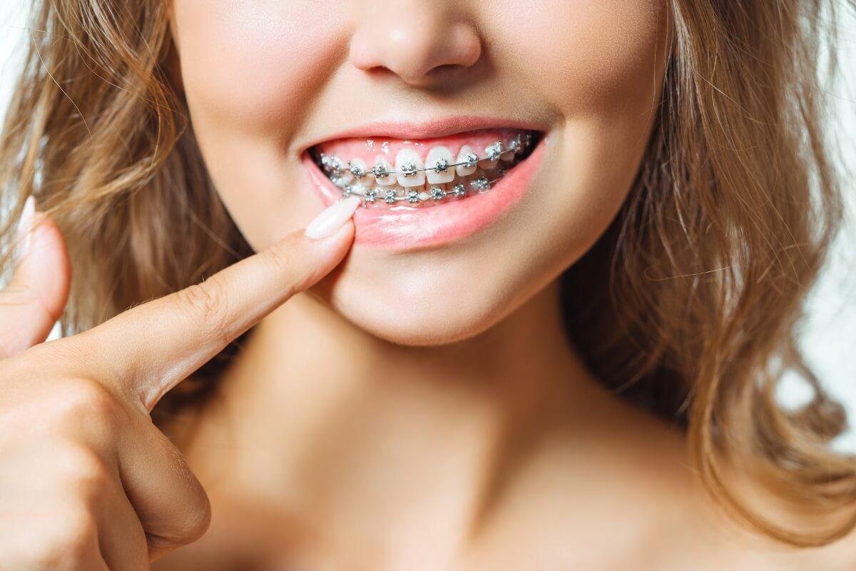 Evitar llagas con la ortodoncia