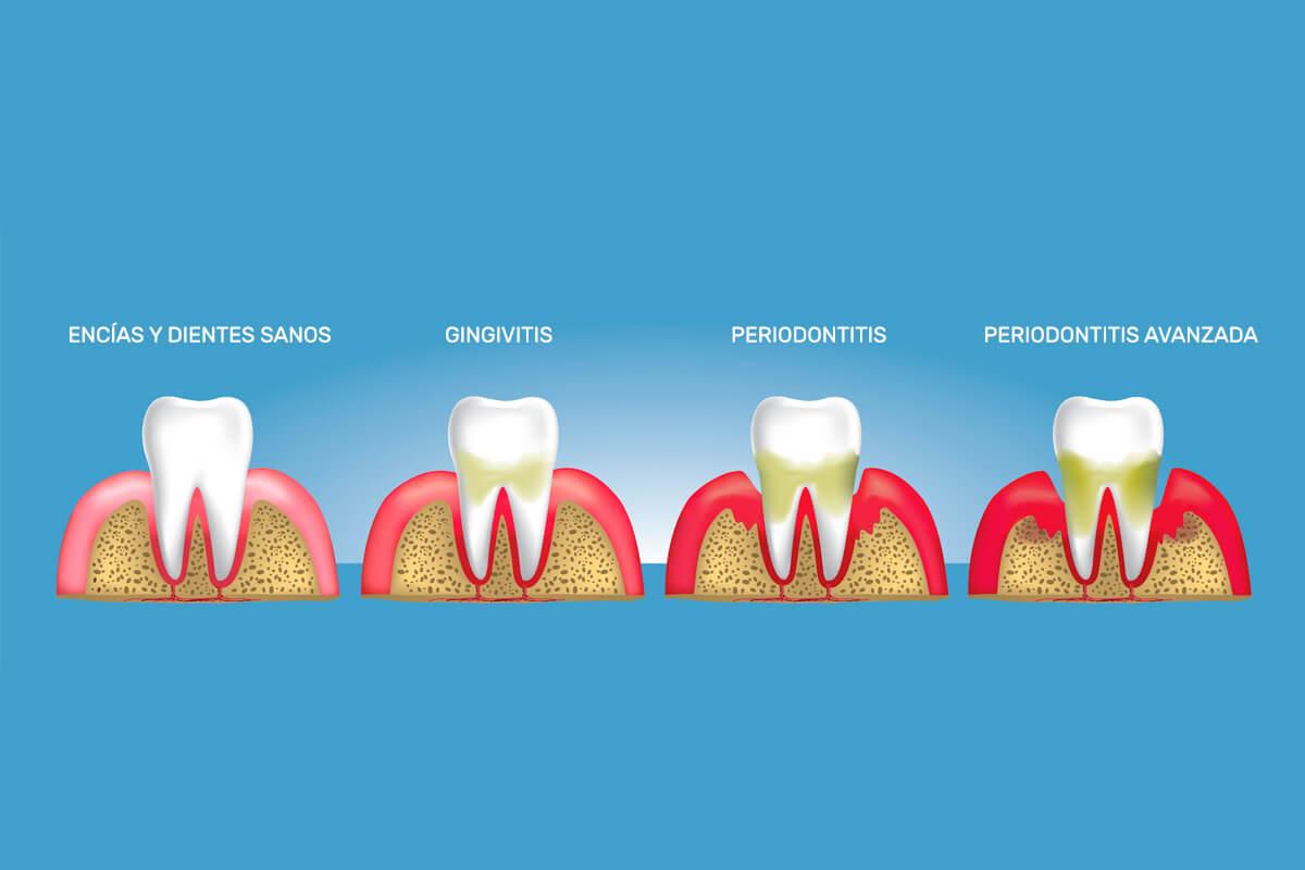 Síntomas de la periodontitis