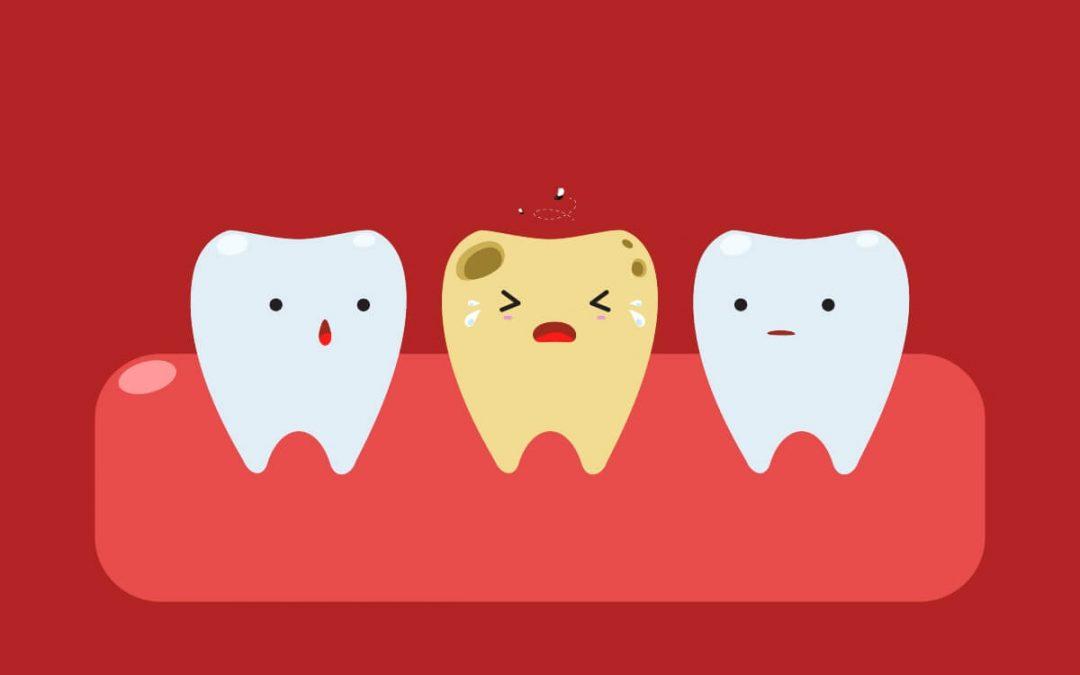 ¿Qué es un diente necrosado? Causas y soluciones